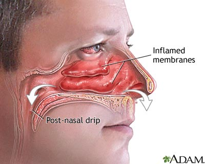 sinus infection treatment
