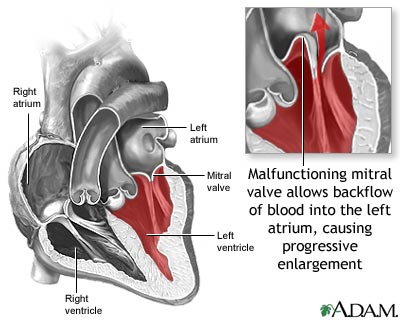 mitral valve prolapse syndrome