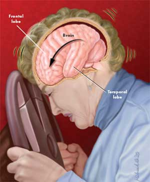 traumatic brain injury, post traumatic headache
