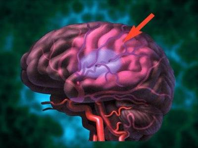 Early Warning Signs of Stroke?