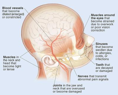 Sources Of Headaches